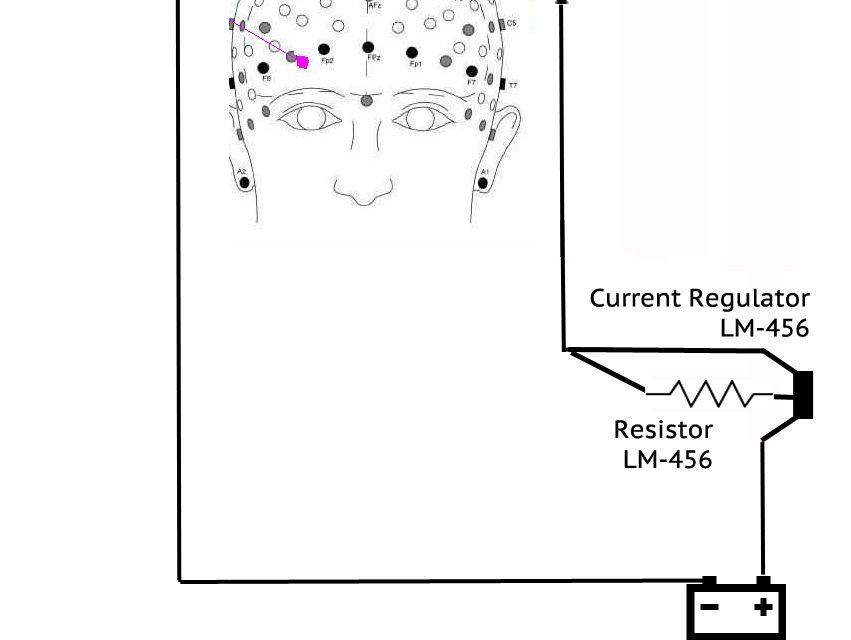 GoFlow To Offer $99 tDCS Brain Augmentation Kit