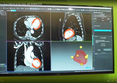 NVIDIA EGX AI Platform Improves Medical Imaging